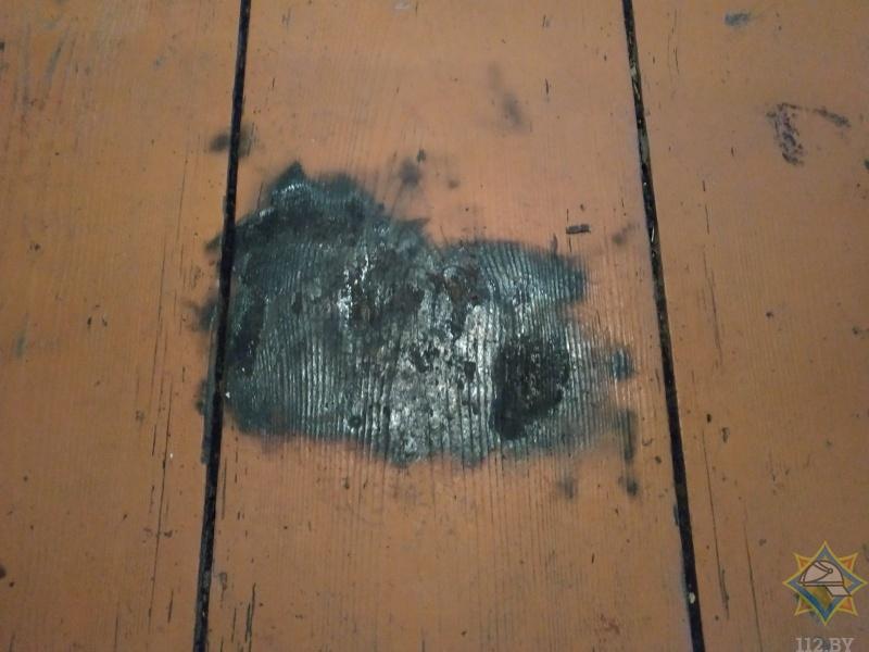 От полученных ожогов скончалась пенсионерка, которую нашли обгоревшей в доме